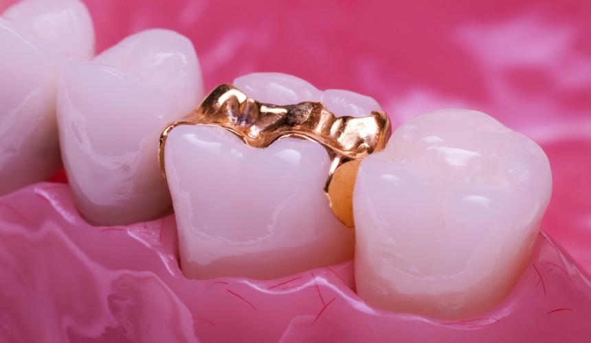 Zahn- und Gebisssanierung
